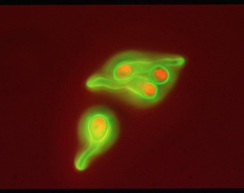 auskeimende Schimmelsporen im Mikroskop